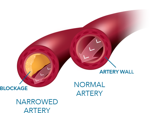 A graphic showing a comparison between an artery narrowed by blockage and a normal artery without blockage against its artery wall