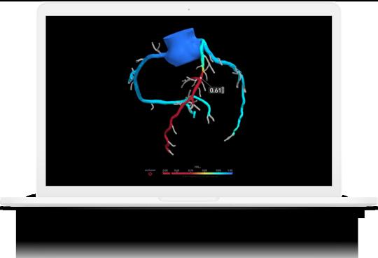A laptop showing heartflow application