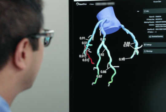 A man looking at a monitor which shows HeartFlow analysis