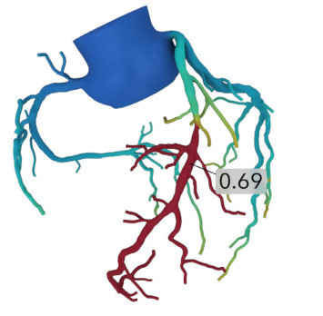 A schematic model of heart vessels
