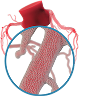 A graphic showing magnification on one of the coronary arteries