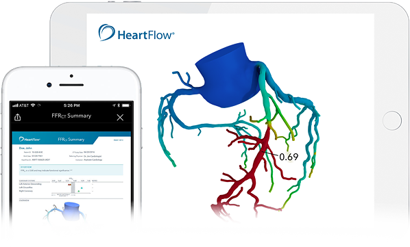 IPad and iPhone showing HeartFlow results on screen